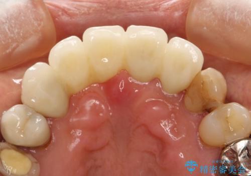 前歯のブリッジの再製作 根管治療からやり直すの治療後