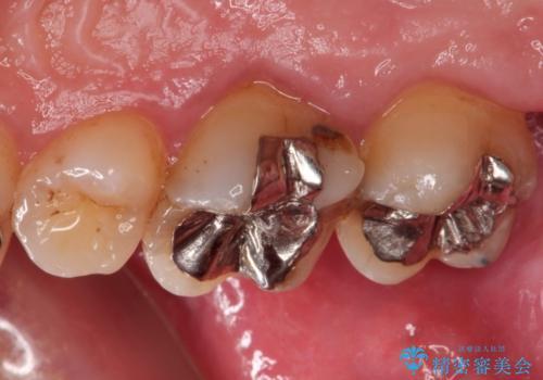 金属の詰め物の下に虫歯が オールセラミッククラウンによる虫歯治療の治療前