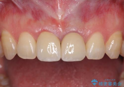 短い前歯を長くしたい 外科処置を用いた前歯のセラミック治療の治療後