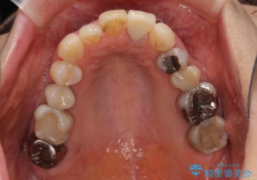 前歯の茶色い縁を綺麗にしたい 前歯のオールセラミックの治療後