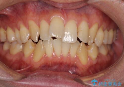 1日で白い歯にしたいの治療前
