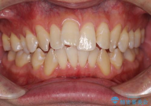1日で白い歯にしたいの症例 治療後