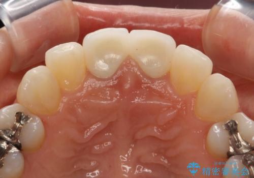 前歯のセラミック治療 根管治療からやり直しの治療後