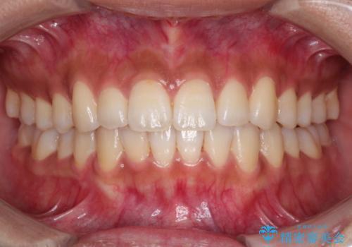 インビザラインで前歯のガタガタを改善の症例 治療後