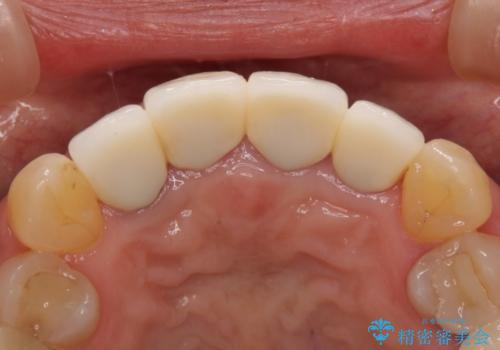 前歯が痛く、歯を磨くと出血するの治療後