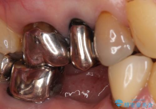 オールセラミッククラウン 抜歯した歯をブリッジでの治療前