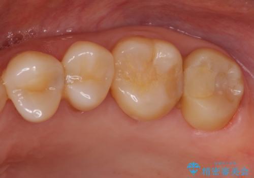 奥歯が痛い ゴールドクラウンによる補綴治療の治療前