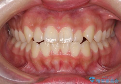 たばこで黄ばんだ歯を白くの症例 治療前