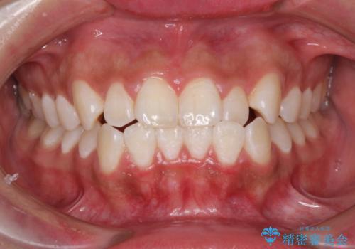たばこで黄ばんだ歯を白くの症例 治療後