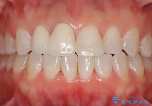 変色した前歯をオールセラミッククラウンに 下の前歯も一緒に部分矯正の治療後