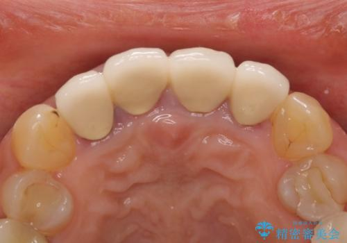 前歯が痛く、歯を磨くと出血するの治療前