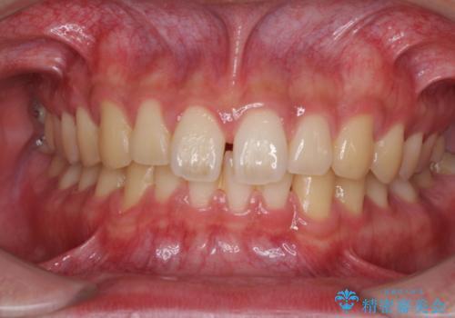 空隙歯列弓(すきっ歯)の症例 治療前