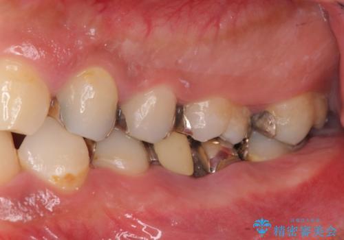 オールセラミッククラウン 歯冠長延長術 歯の高さが低い歯の治療の治療前