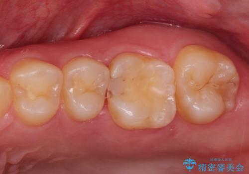 虫歯の再発 セラミックインレー修復の症例 治療前