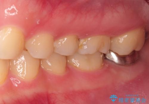 虫歯の再発 セラミックインレー修復の治療前