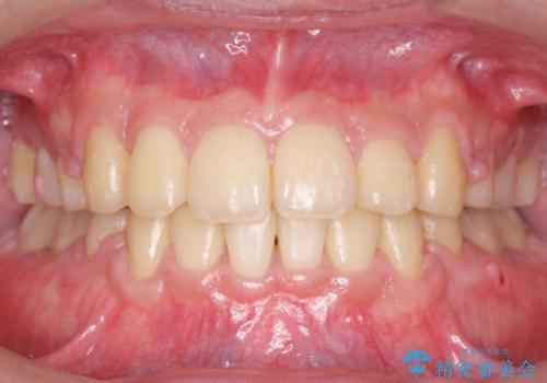 前歯のねじれ 下の歯のガタガタの症例 治療後