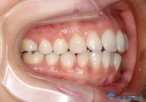 前歯の出っ歯とでこぼこをインビザラインで改善の治療中