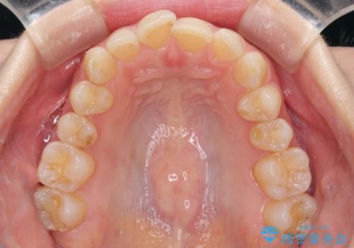 長年気にしていた前歯をインビザラインで整えるの治療前