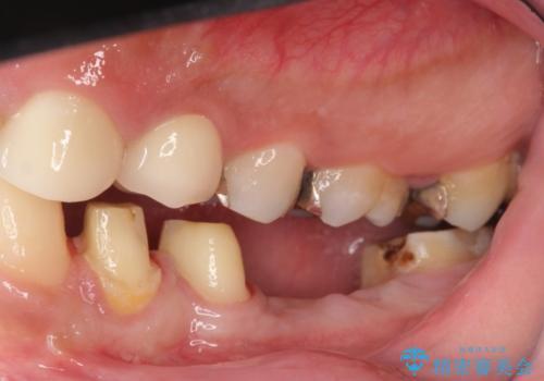 オールセラミッククラウン 歯冠長延長術 歯の高さが低い歯の治療の治療中
