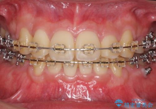 前歯のねじれ 下の歯のガタガタの治療中