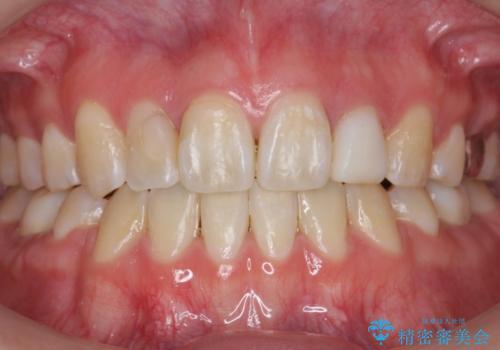 矯正終了後、さらに歯をきれいに。(レーザーホワイトニング)の症例 治療前