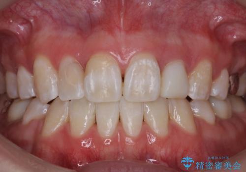 矯正終了後、さらに歯をきれいに。(レーザーホワイトニング)の症例 治療後