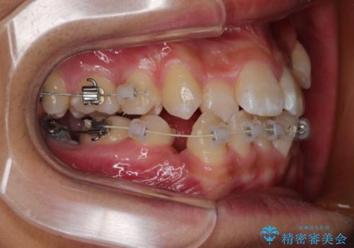前歯のガタガタを改善 八重歯も無くなりキレイな歯並びにの治療中