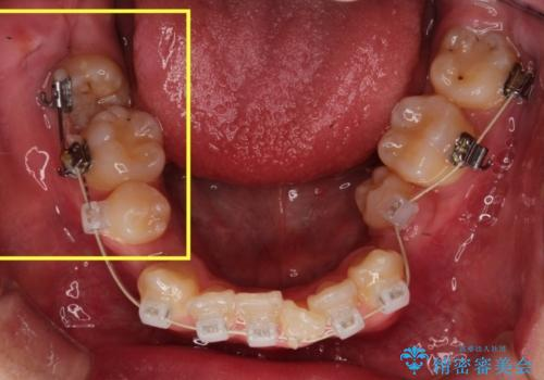 全顎矯正治療の部分的な紹介 ~横向きに生えた奥歯を整直させる~の治療中