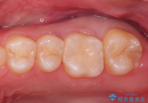 虫歯の再発 セラミックインレー修復の治療後