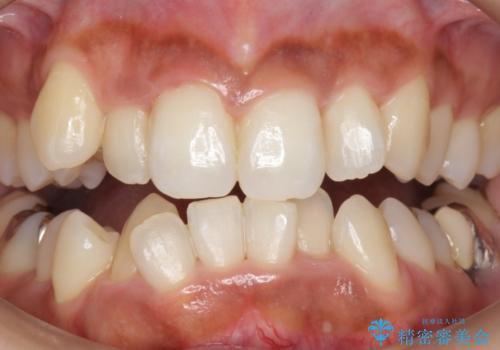 ホワイトニングでさらに歯を白く。の症例 治療前