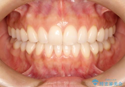 前歯の出っ歯とでこぼこをインビザラインで改善 の症例 治療後