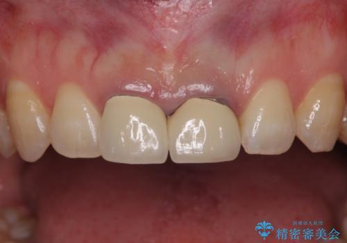 歯周病治療の症例 治療前