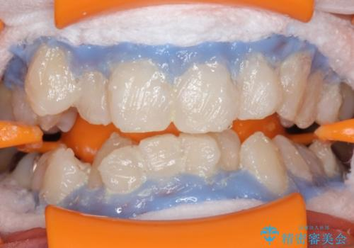 ホワイトニングでさらに歯を白く。の治療中