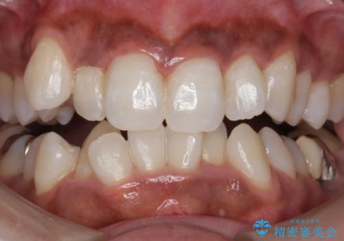 ホワイトニングでさらに歯を白く。の症例 治療後
