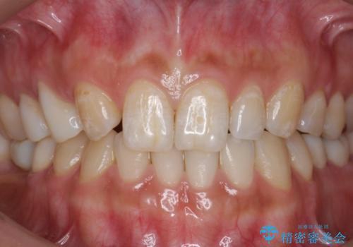 新学期。ホワイトニングで歯を白くの症例 治療前