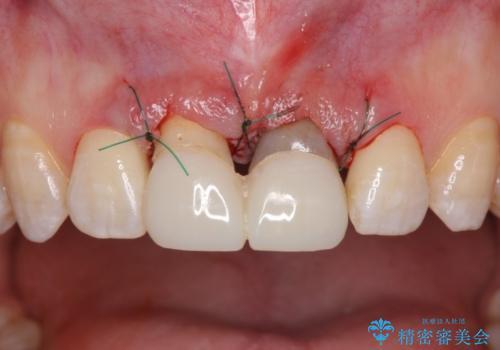 短い前歯を長くしたい 外科処置を用いた前歯のセラミック治療の治療中