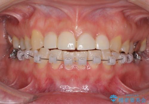 隙間の空いた前歯を治したい 部分矯正とオールセラミッククラウンの治療中
