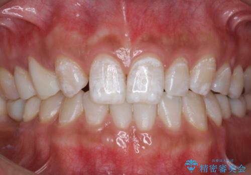 新学期。ホワイトニングで歯を白くの症例 治療後