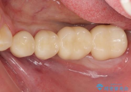 オールセラミッククラウン 歯冠長延長術 歯の高さが低い歯の治療の治療後