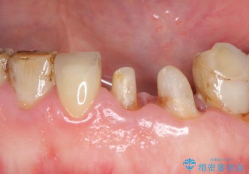 前歯2本のオールセラミッククラウン 根管治療後の補綴の治療中