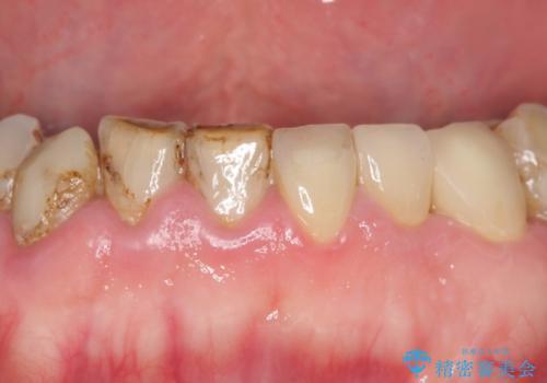 前歯2本のオールセラミッククラウン 根管治療後の補綴の治療後