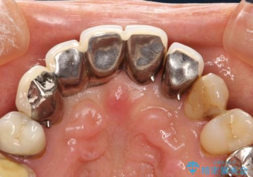 前歯のブリッジの再製作 根管治療からやり直すの治療前