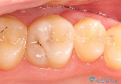 矯正前の虫歯治療でセラミックインレーをの治療前