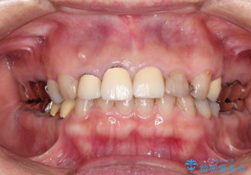 前歯をきれいにしたいの症例 治療前