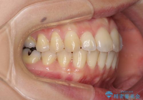 出産しながらでも綺麗な歯並びに インビザラインによる矯正治療の治療中