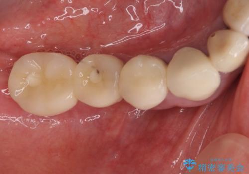汚れがたまって気になる 歯ぐきとの境目から虫歯の治療前