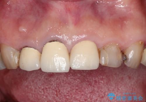 前歯をきれいにしたいの治療前