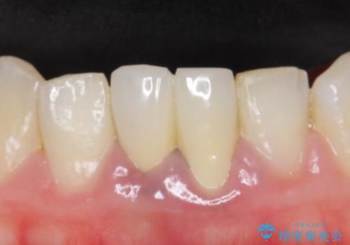 オールセラミッククラウン(エコノミー) 下顎前歯 根管治療後の補綴の治療前