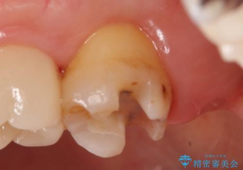 PGA(ゴールド)インレー 古い銀歯の修復の治療中