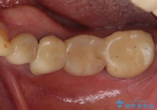 歯が痛い 根管治療とブリッジのやりかえ 60代女性の治療前